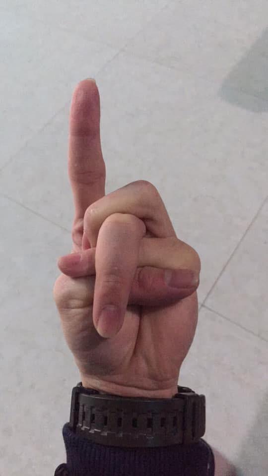 Xoắn não với cuộc thi tài lẻ của tay bạn - Trào lưu chỉ dành cho những người có ngón tay... đặc biệt - ảnh 9