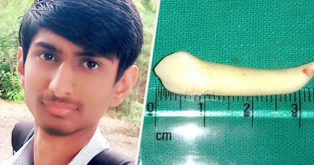Nhổ được hai cái răng cho bệnh nhân, nha sĩ bất ngờ phá kỷ lục Guinness với chiếc răng dài nhất thế giới - Ảnh 2.