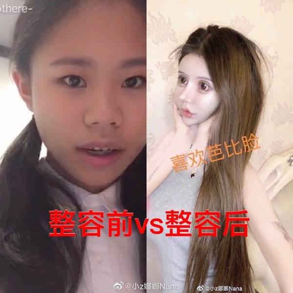 Nghiện phẫu thuật thẩm mỹ từ năm 13 tuổi, thiếu nữ khiến cộng đồng mạng tá hỏa khi công khai những bức ảnh xinh đẹp nhất của mình - Ảnh 1.