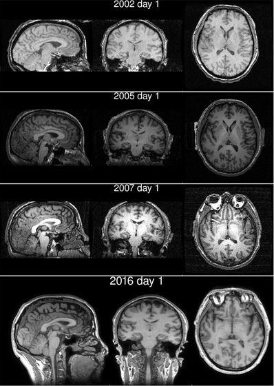 Sự thật đáng kinh ngạc được tiết lộ từ kết quả quét não của một tu sĩ Tây Tạng - Ảnh 2.