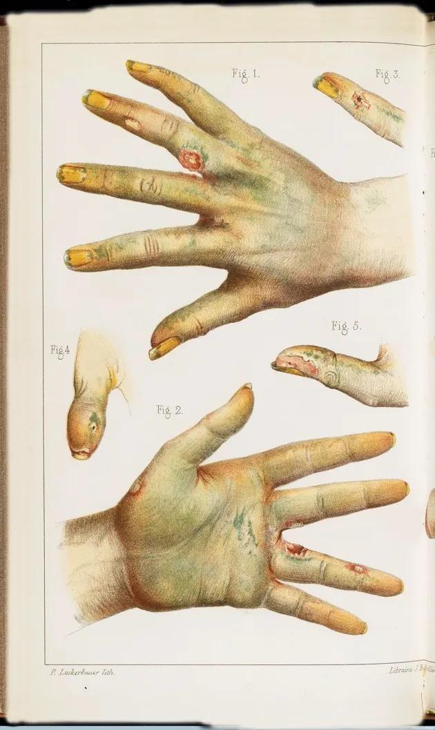 Bí ẩn về những người sử dụng chất độc làm thuốc bổ tại Châu Âu thế kỷ 19 - Ảnh 8.