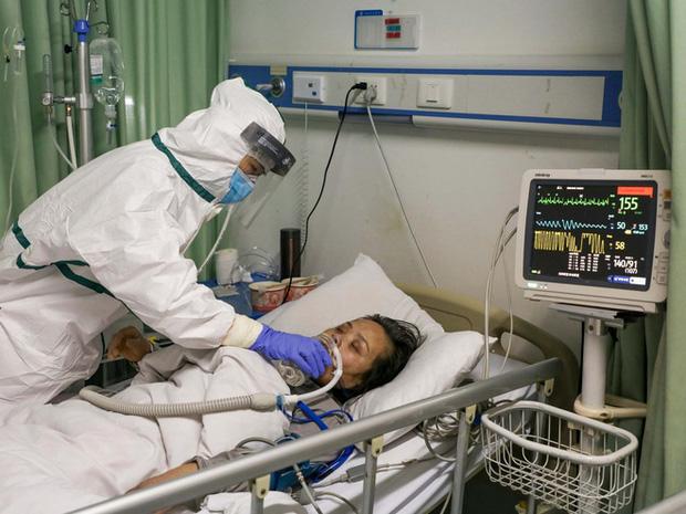 Covid-19 nguy hiểm cả với người trẻ: Chia sẻ của một bác sĩ tuyến đầu cho thấy nó tàn phá phổi người bệnh như thế nào - Ảnh 5.