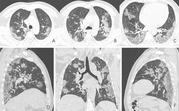 Covid-19 nguy hiểm cả với người trẻ: Chia sẻ của một bác sĩ tuyến đầu cho thấy nó tàn phá phổi người bệnh như thế nào - Ảnh 2.