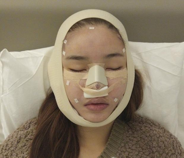 Mỹ nhân Vbiz khiến netizen hoảng hốt vì mặt sưng phồng: Diệp Lâm Anh thành bản sao Park Bom, Hiền Hồ bị nghi dao kéo - ảnh 19