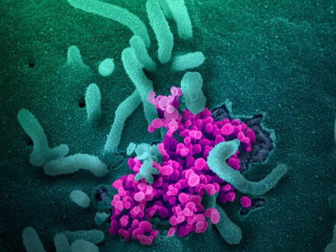 Tin vui: Virus corona đột biến chậm hơn cúm, vắc-xin Covid-19 sẽ có hiệu quả kéo dài - Ảnh 4.