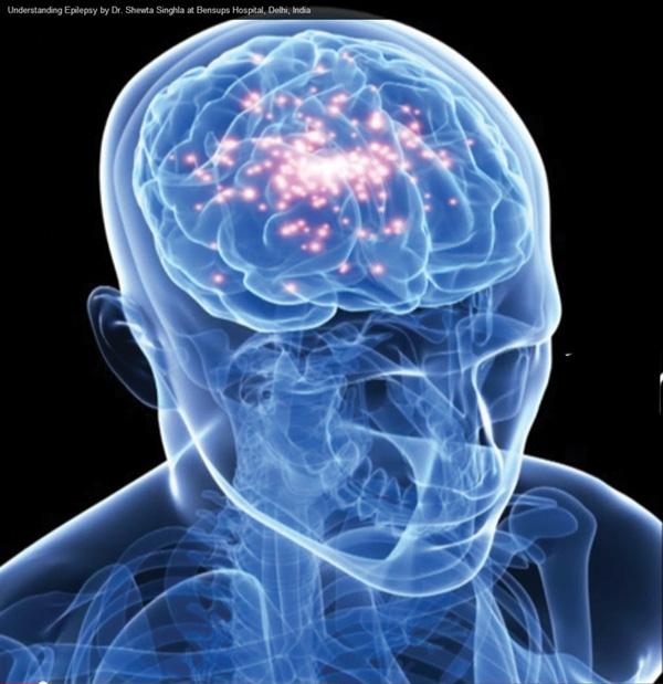 5 căn bệnh nan y bị hiểu lầm tai hại - Ảnh 6.