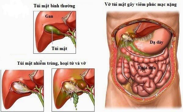 Viêm gan B, viêm túi mật âm thầm sát hại chúng ta như thế nào? - Ảnh 2.