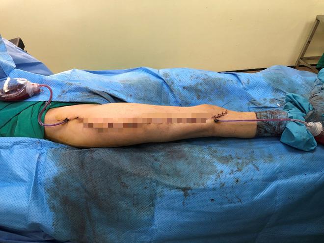Lần đầu tiên ở Việt Nam: Cô gái ung thư xương được thay xương đùi nhân tạo - Ảnh 4.