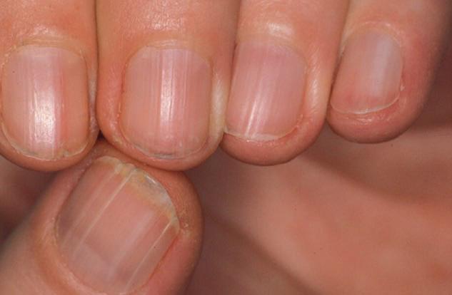 GS Đông y tiết lộ: Cách xem móng tay – tấm gương phản chiếu nội tạng bị bệnh cần đi khám - Ảnh 1.