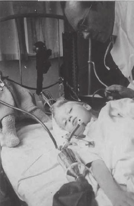 Lịch sử của máy thở và đơn vị chăm sóc tích cực ICU: Những hòn đảo sống trong đại dịch COVID-19 - Ảnh 4.