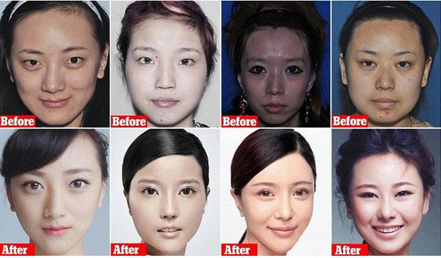 Ngành công nghiệp sắc đẹp Trung Quốc thời 4.0: Hành trình nguy hiểm từ các app tư vấn đập đi xây lại đến hàng chục lần nằm trên bàn mổ - Ảnh 8.