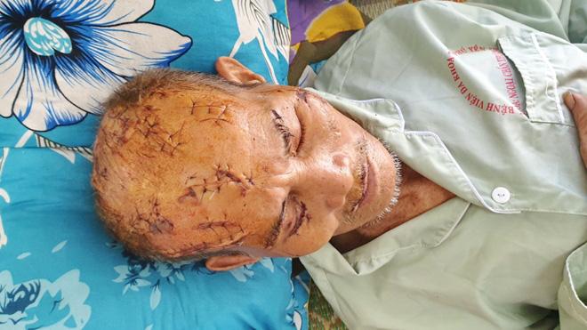 Thông tin thêm về vụ cụ ông bị người thân chém 17 nhát ở đầu và mặt - Ảnh 1.
