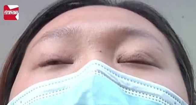 Chi 65 triệu đồng để phẫu thuật cắt mí, đẹp đâu chẳng thấy cô gái sốc khi phát hiện bất thường oái oăm ở đôi mắt của mình - Ảnh 1.