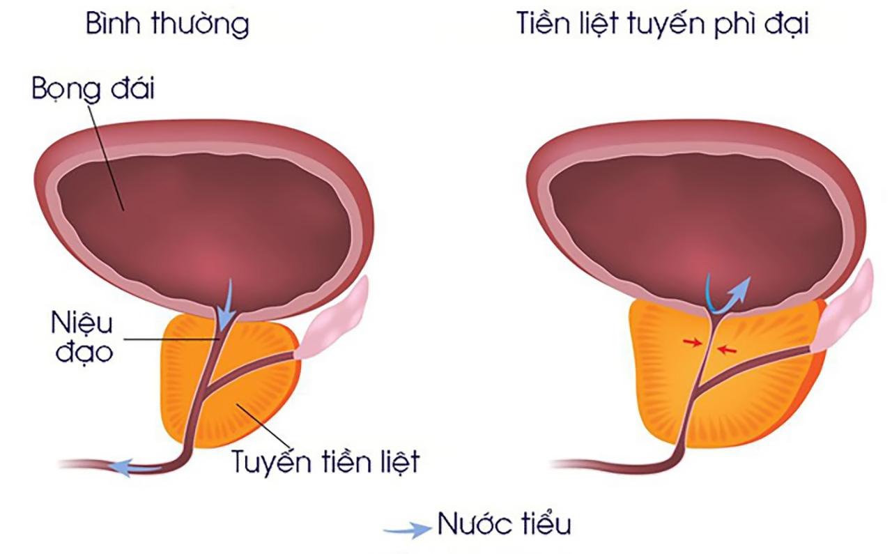 """Căn bệnh """"khó nói"""" khiến nam giới tiểu nhiều, tiểu gấp: 3 bước để phát hiện và điều trị"""