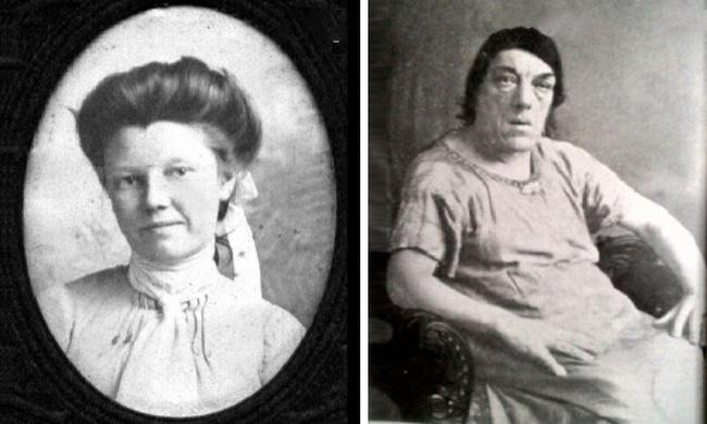 Mắc bệnh lạ khiến gương mặt biến dạng, người phụ nữ chấp nhận trở thành trò cười cho thiên hạ để kiếm tiền nuôi con - Ảnh 1.