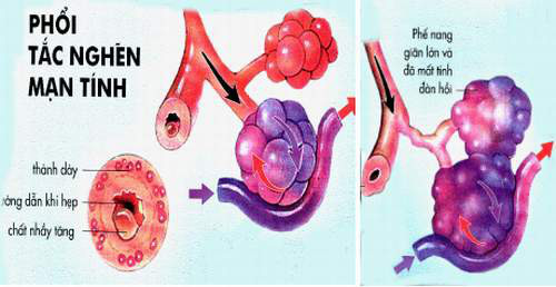 Những căn bệnh phụ nữ dễ mắc phải hơn nam giới - Ảnh 6.