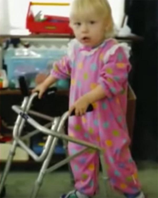 Mắc hội chứng hiếm phải cưa mất 2 chân và cho vào trại trẻ mồ côi, 20 năm sau, bé gái khiến cả thế giới phải ngưỡng mộ - Ảnh 3.