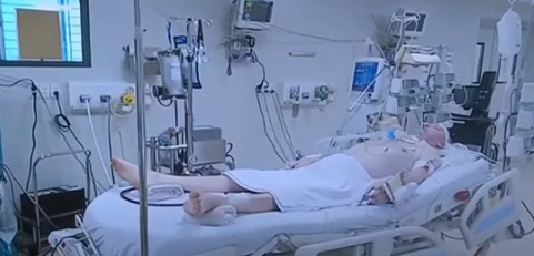 Bệnh nhân phi công người Anh mắc Covid-19 nặng nhất Việt Nam: Muốn ghép phổi cần những điều kiện gì? - Ảnh 1.