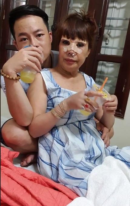 Cô dâu 62 tuổi tiếp tục đụng chạm dao kéo để trẻ trung như gái 18, nhìn gương mặt hậu phẫu thuật nhiều người không khỏi hoảng hốt - Ảnh 5.