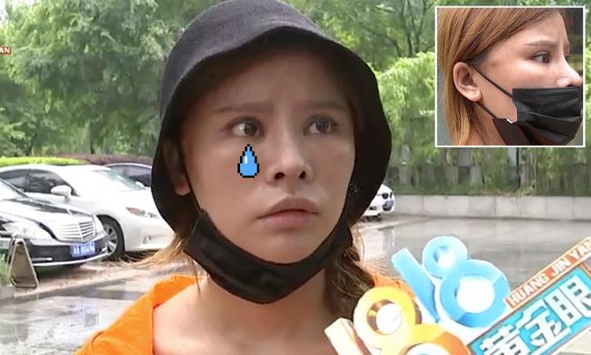 Bỏ 65 triệu làm thẩm mỹ, chị gái ức phát khóc vì nhận về khuôn mặt cau có khó chịu 24/7 - Ảnh 2.