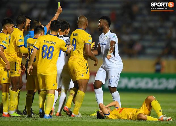 Cầu thủ HAGL ức chế, bóp cổ đối phương trong trận thua Nam Định - Ảnh 5.