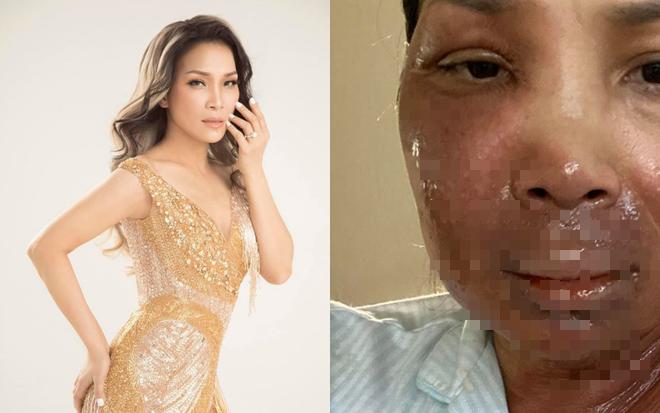 Ca sĩ Hồng Ngọc bất ngờ công khai ảnh bị bỏng 2/3 gương mặt - Ảnh 2.