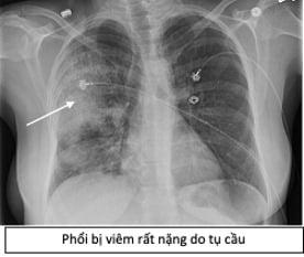 Bác sĩ BV Đại học Y Dược tiết lộ 1 cửa ngõ giúp vi khuẩn tấn công phổi rất ít người biết - Ảnh 1.