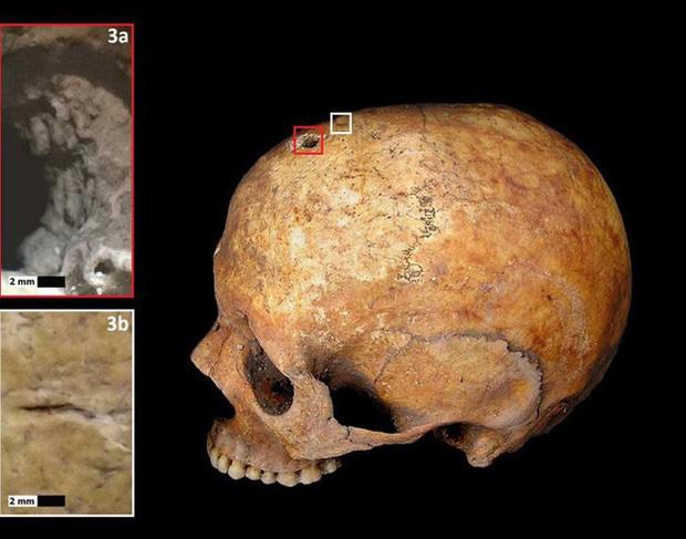 Bí ẩn bộ hài cốt 1.300 năm tuổi sinh con trong quan tài và lý giải cho hiện tượng khiến nhiều người rùng mình - Ảnh 2.