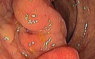 Đau bụng đi khám ra ung thư giai đoạn cuối: Bác sĩ cảnh báo đừng chờ đến tận khi thấy đau