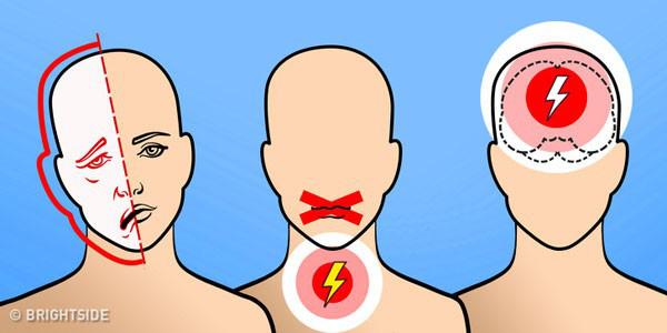 6 dấu hiệu cảnh báo cơn đột quỵ não - Ảnh 1.
