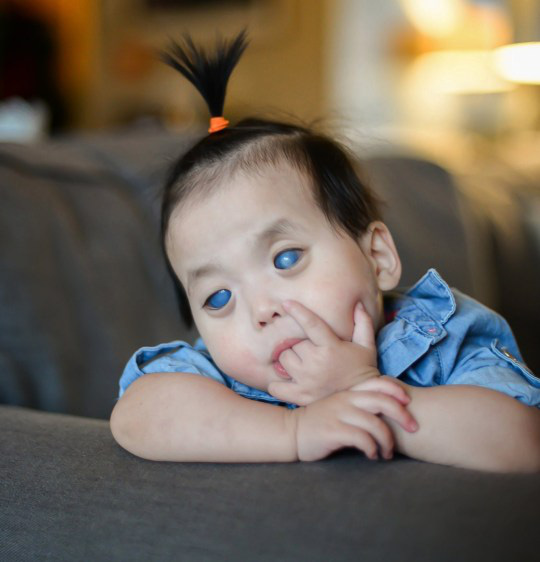 Bé gái có đôi mắt xanh thẳm khiến em khóc trong đau đớn 16 tiếng/ngày sau 1 năm nhận nuôi đã có sự thay đổi ngoạn mục - Ảnh 1.