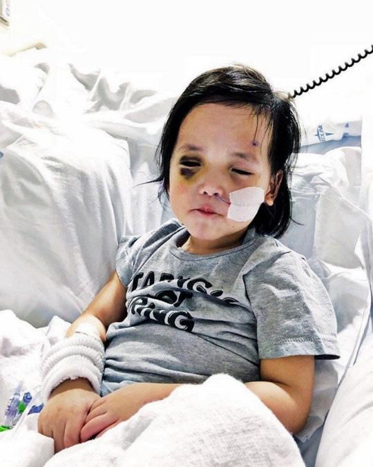 Bé gái có đôi mắt xanh thẳm khiến em khóc trong đau đớn 16 tiếng/ngày sau 1 năm nhận nuôi đã có sự thay đổi ngoạn mục - Ảnh 5.