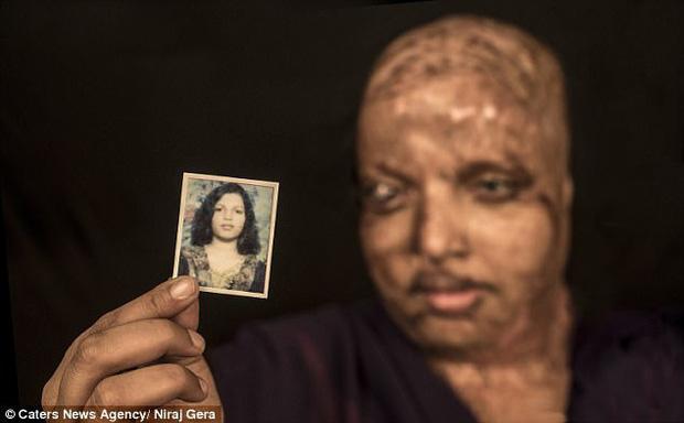 Cô gái trẻ bị tạt axit đến biến dạng khuôn mặt, mù mắt vì từ chối lời cầu hôn, 11 năm sau phép màu kỳ diệu đã xảy ra - Ảnh 1.