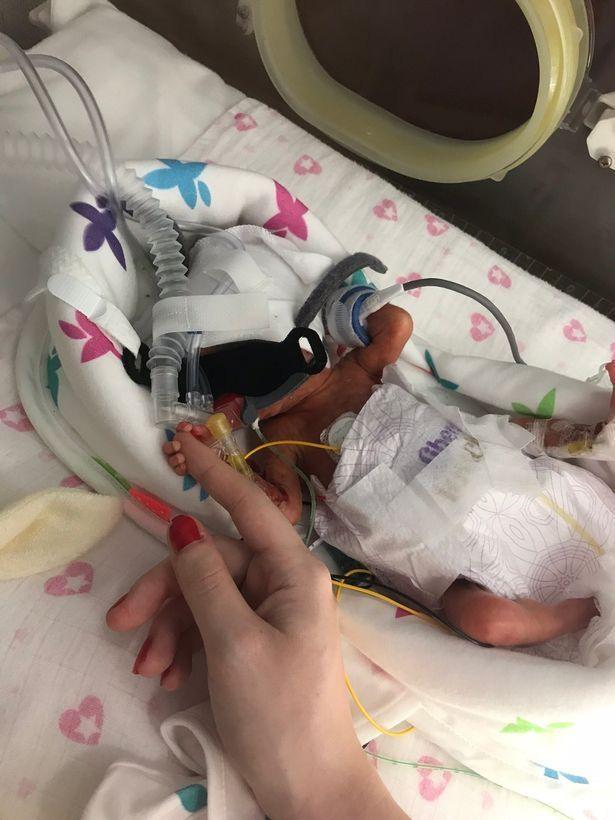 Cặp sinh đôi sinh non có bé chỉ nặng 566gr, hình ảnh hiện tại của hai chị em khiến nhiều người ngỡ ngàng - Ảnh 1.