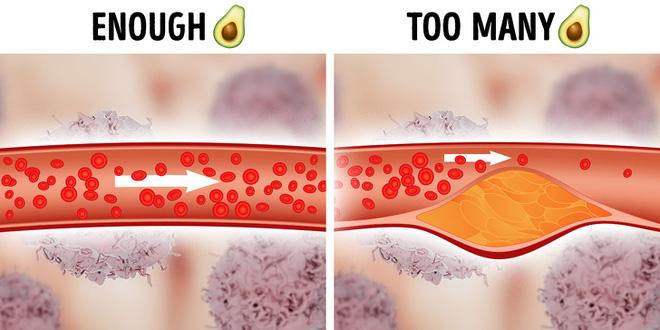 Tại sao không nên ăn quá nhiều cà rốt? Khoa học lý giải các thói quen ăn uống xấu mà mọi người vẫn nghĩ là lành mạnh - Ảnh 4.