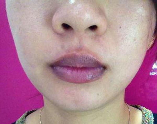 Đôi môi nói gì về sức khỏe của bạn? - Ảnh 4.