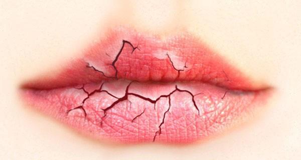 Đôi môi nói gì về sức khỏe của bạn? - Ảnh 7.
