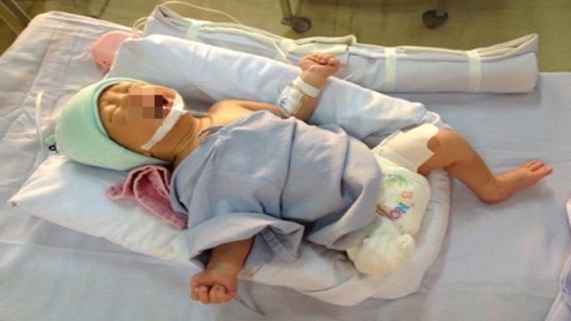 Hành trình sự sống của thai nhi bị văng ra khỏi bụng mẹ một cách kì diệu