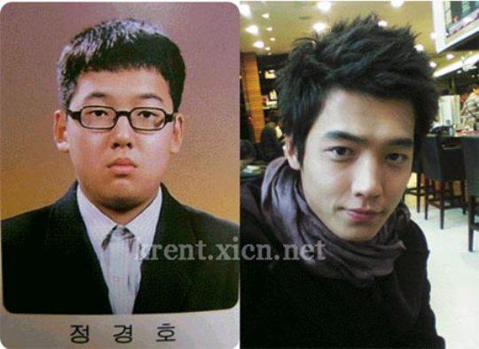 Diễn viên mỹ nam Jeong Kyung Ho và nghi án nâng mũi, cắt mí và giảm cân nghiêm ngặt.