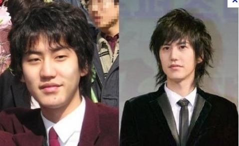 Kyuhyun của Super Junior trước và sau khi phẫu thuật mí mắt.