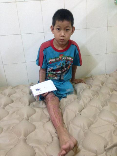 Em Phạm Văn Thạnh vừa trải qua cơn nguy kịch hiện đang trong thời gian chờ phẫu thuật tiếp