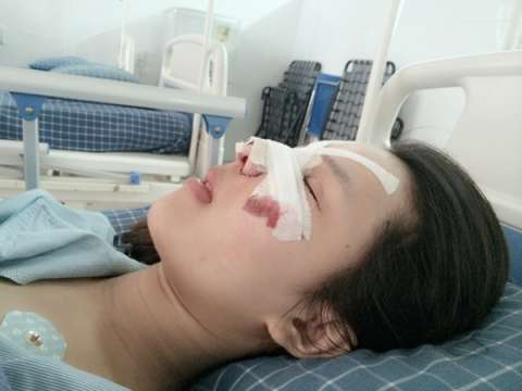 Các bước tiến hành phẫu thuật thẩm mỹ của Minh Yến gồm: làm mắt to, xử lý hàm hô trên dưới, gọt hàm hai bên và nâng mũi theo cấu trúc S-line.