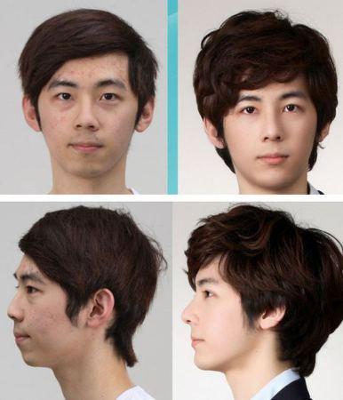 Với phẫu thuật thẩm mỹ, chàng trai này đã trở thành số 1 trong mắt các bạn gái.