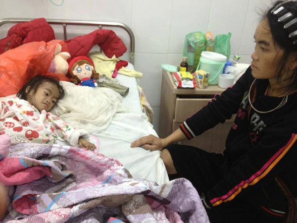 Rùng mình nhìn bức ảnh cô bé H'mông nặng 6kg mắc trọng bệnh