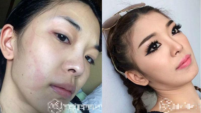 Từ một cô gái có khuôn mặt to thô kệch, làn da đen và hàm răng không đều, Yae Uunws khiến tất cả mọi người ngạc nhiên bởi sự thay đổi ngoạn mục nhờ vào phẫu thuật thẩm mỹ.