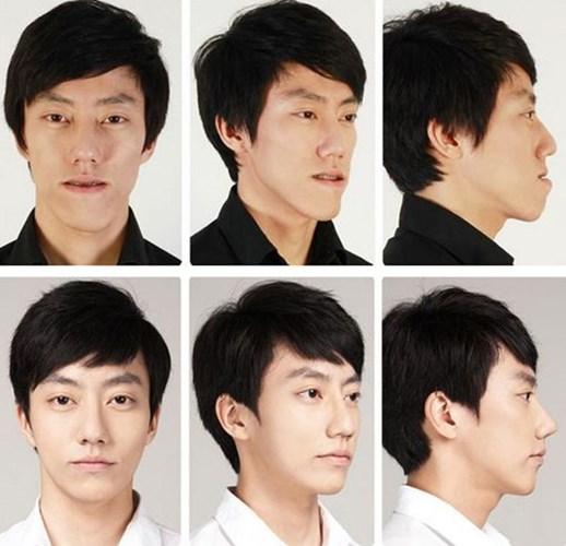 Khuôn mặt có phần thô kệch của chàng trai đã thay đổi trở nên cực kỳ nam tính sau phẫu thuật.