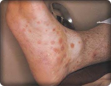 Tiết lộ những hình ảnh kinh khủng của người mắc bệnh giang mai 6