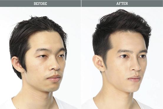 Phẫu thuật mí, mũi, gọt mặt khiến chàng trai trở nên vô cùng nam tính.