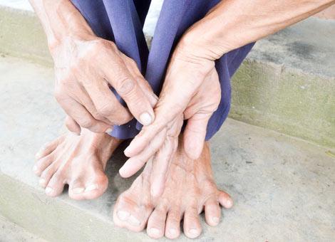 Đôi bàn tay, bàn chân nhiều ngón kỳ dị của ông Lực. Ảnh: Công an nhân dân