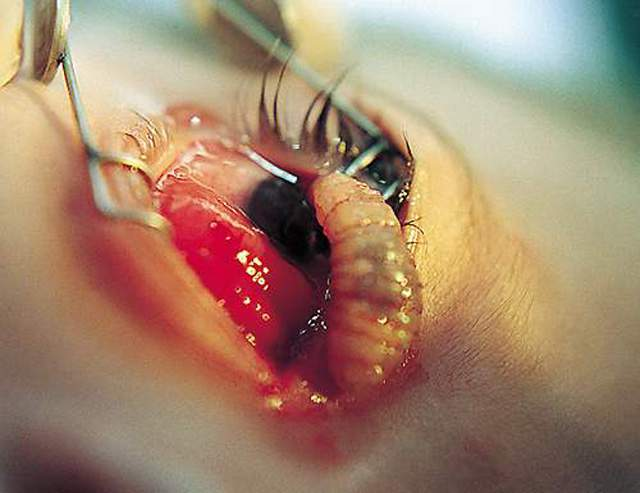 Ấu trùng cercaria là 1 nỗi khiếp đảm của người dân nhiều khu vực trên thế giới.